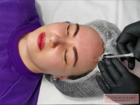 Botox: myths and fears